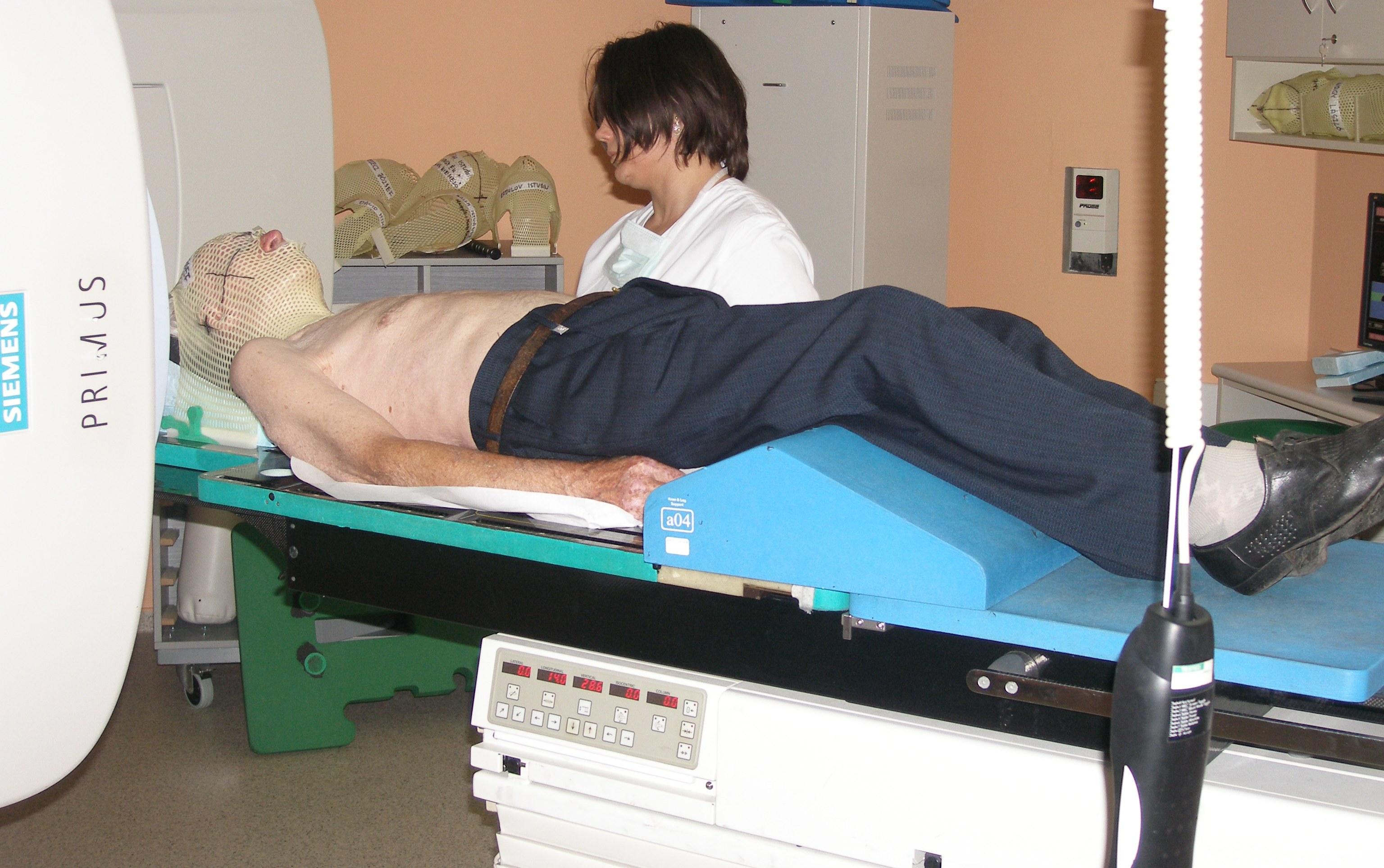 Prosztata rákos fájdalom besugárzás után