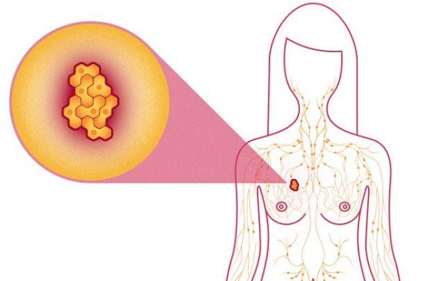 jóindulatú daganatok fogyást okozhatnak