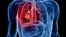 prosztatarák tüdőáttét