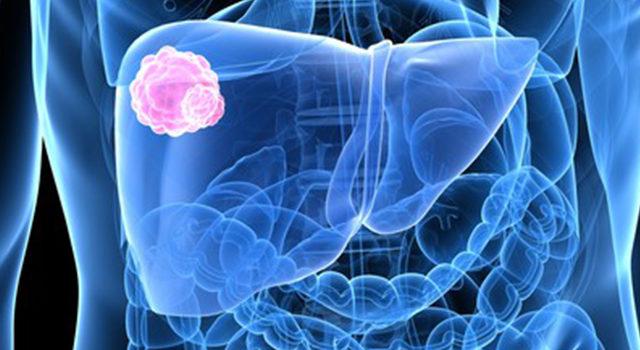 A 20 legfontosabb rákterápia | TermészetGyógyász Magazin